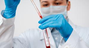Ozdrowieńcy stanowią już 11,5 proc. wszystkich zakażonych koronawirusem w Polsce